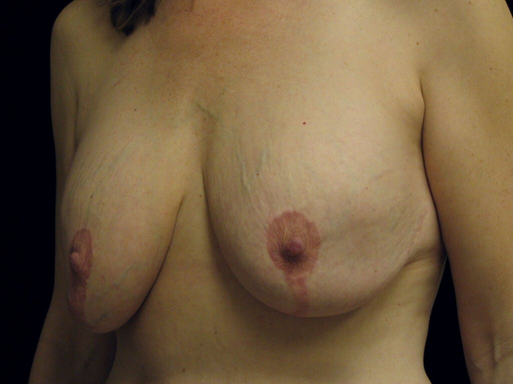 Revision Breast Surgery Gallery - Patient 39244107 - Image 7