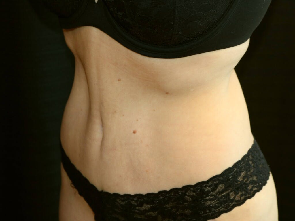 Tummy Tuck Gallery - Patient 39244106 - Image 6