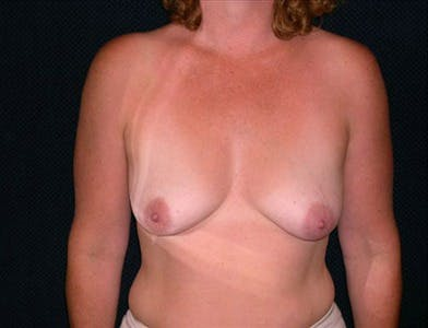 Breast Augmentation Gallery - Patient 39244104 - Image 1