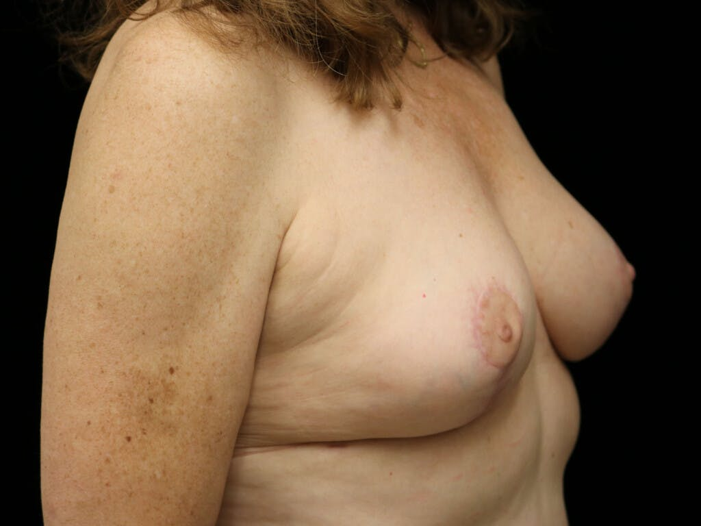 Vertical and Inverted T Breast Lift Gallery - Patient 39244110 - Image 4