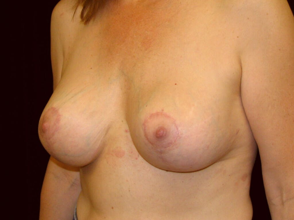 Revision Breast Surgery Gallery - Patient 39244107 - Image 8