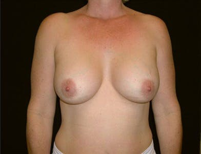 Breast Augmentation Gallery - Patient 39244104 - Image 2