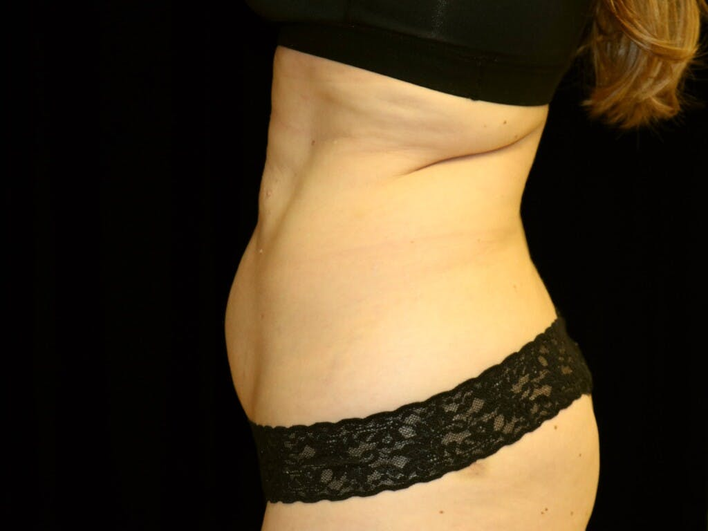 Tummy Tuck Gallery - Patient 39244106 - Image 7