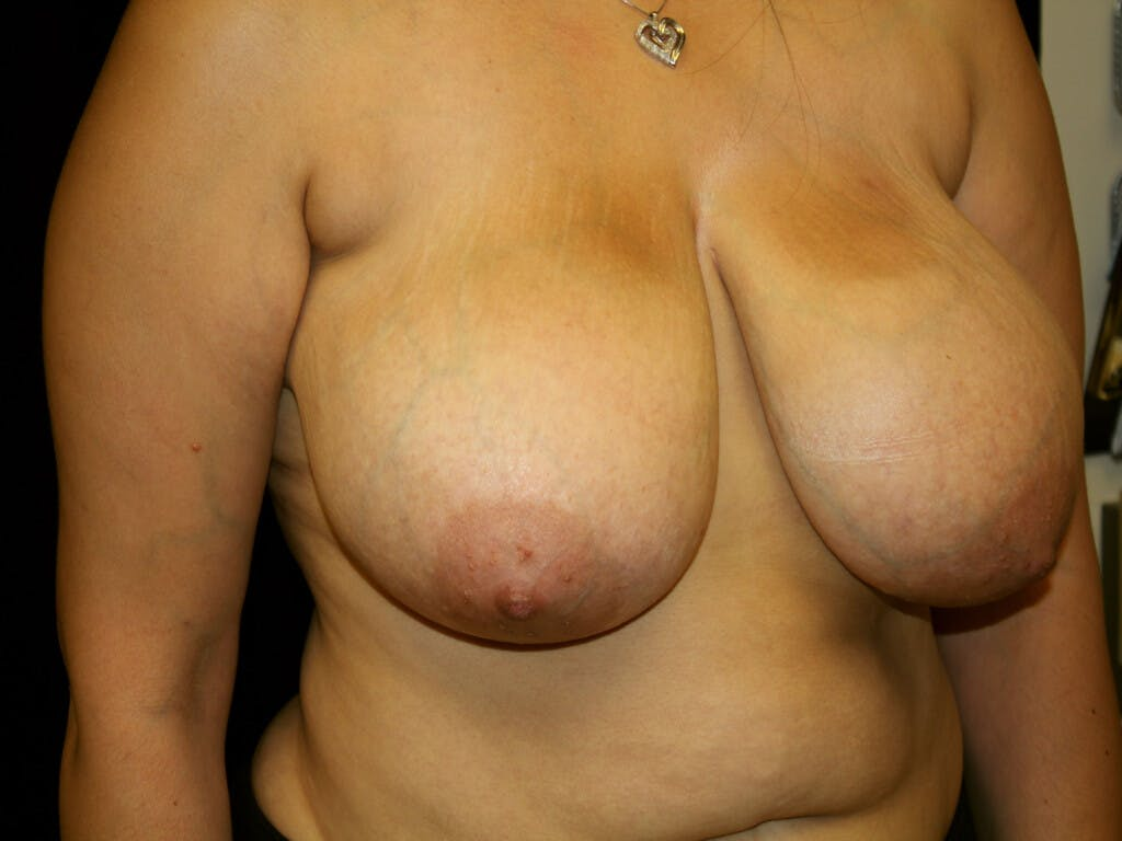 Breast Reduction T Incision Gallery - Patient 39244112 - Image 3