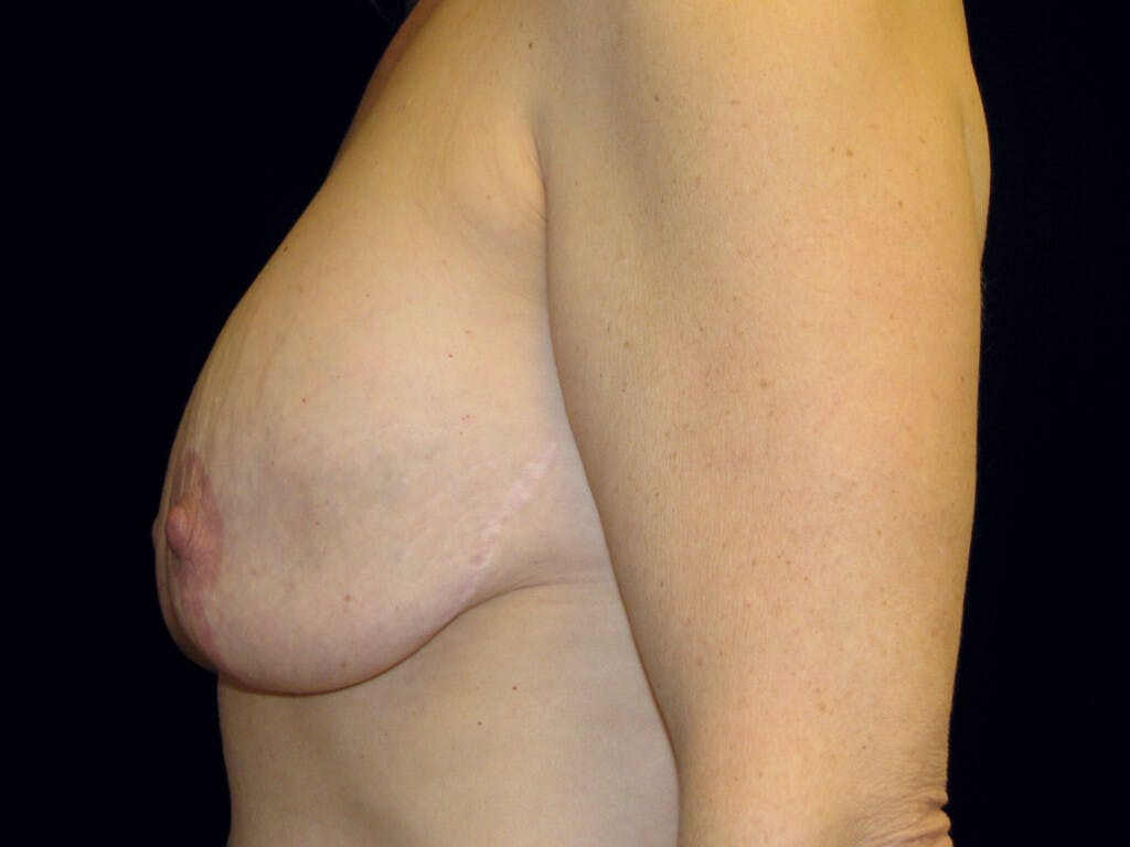 Revision Breast Surgery Gallery - Patient 39244107 - Image 9