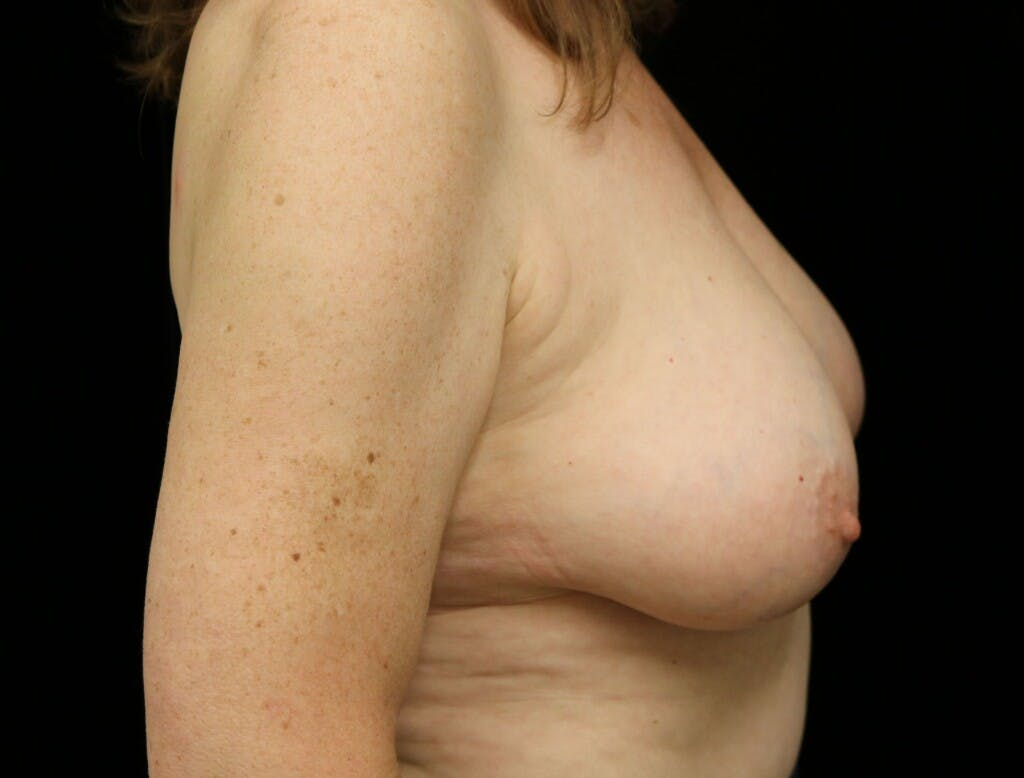Vertical and Inverted T Breast Lift Gallery - Patient 39244110 - Image 5