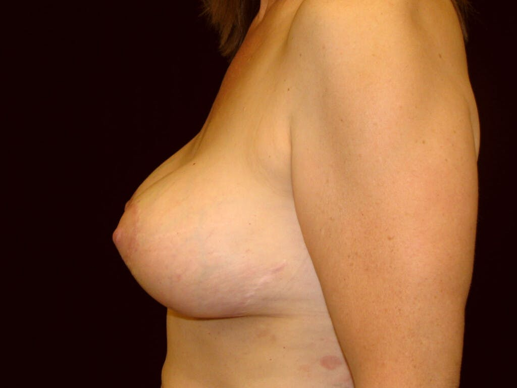 Revision Breast Surgery Gallery - Patient 39244107 - Image 10