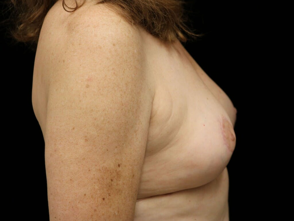 Vertical and Inverted T Breast Lift Gallery - Patient 39244110 - Image 6