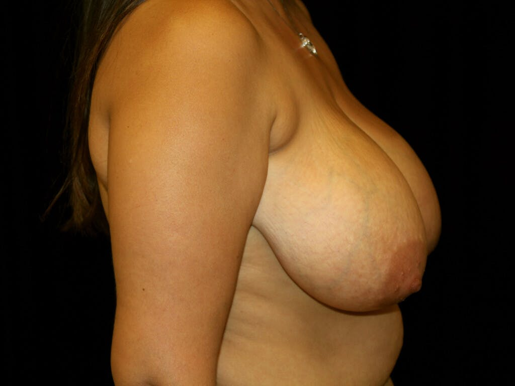 Breast Reduction T Incision Gallery - Patient 39244112 - Image 5