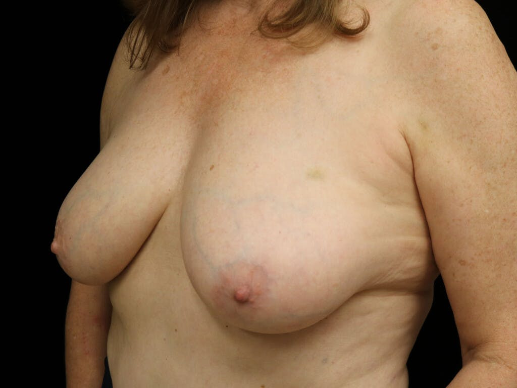 Vertical and Inverted T Breast Lift Gallery - Patient 39244110 - Image 7