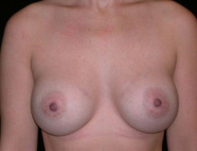 Breast Augmentation Gallery - Patient 39244108 - Image 2