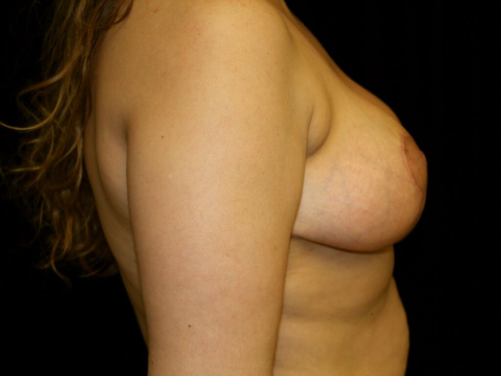 Breast Reduction T Incision Gallery - Patient 39244112 - Image 6