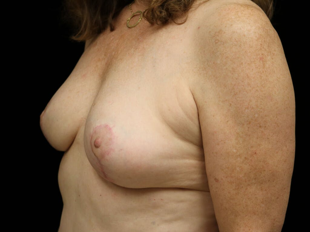 Vertical and Inverted T Breast Lift Gallery - Patient 39244110 - Image 8