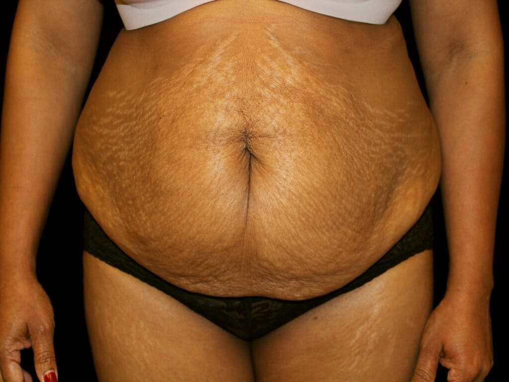 Tummy Tuck Gallery - Patient 39244124 - Image 1