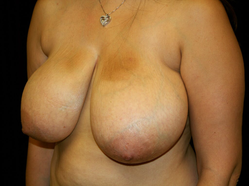 Breast Reduction T Incision Gallery - Patient 39244112 - Image 7