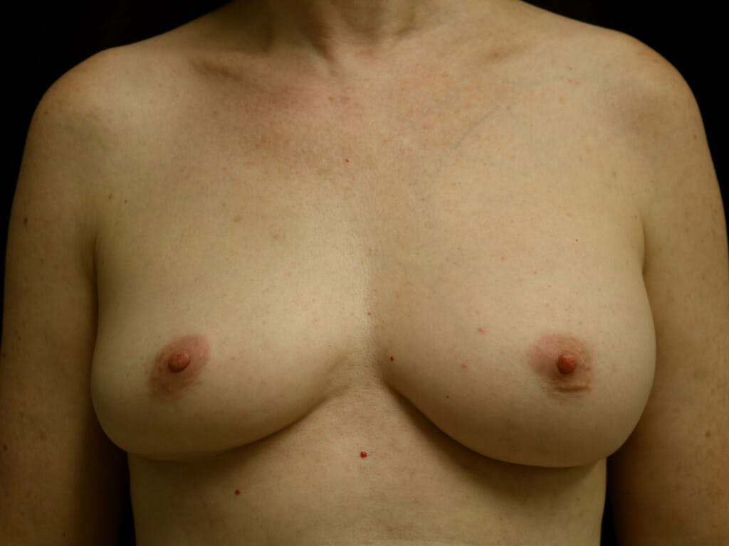 Revision Breast Surgery Gallery - Patient 39244120 - Image 1