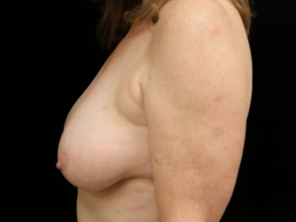 Vertical and Inverted T Breast Lift Gallery - Patient 39244110 - Image 9