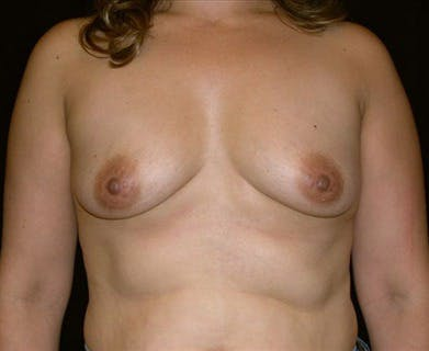 Breast Augmentation Gallery - Patient 39244111 - Image 1