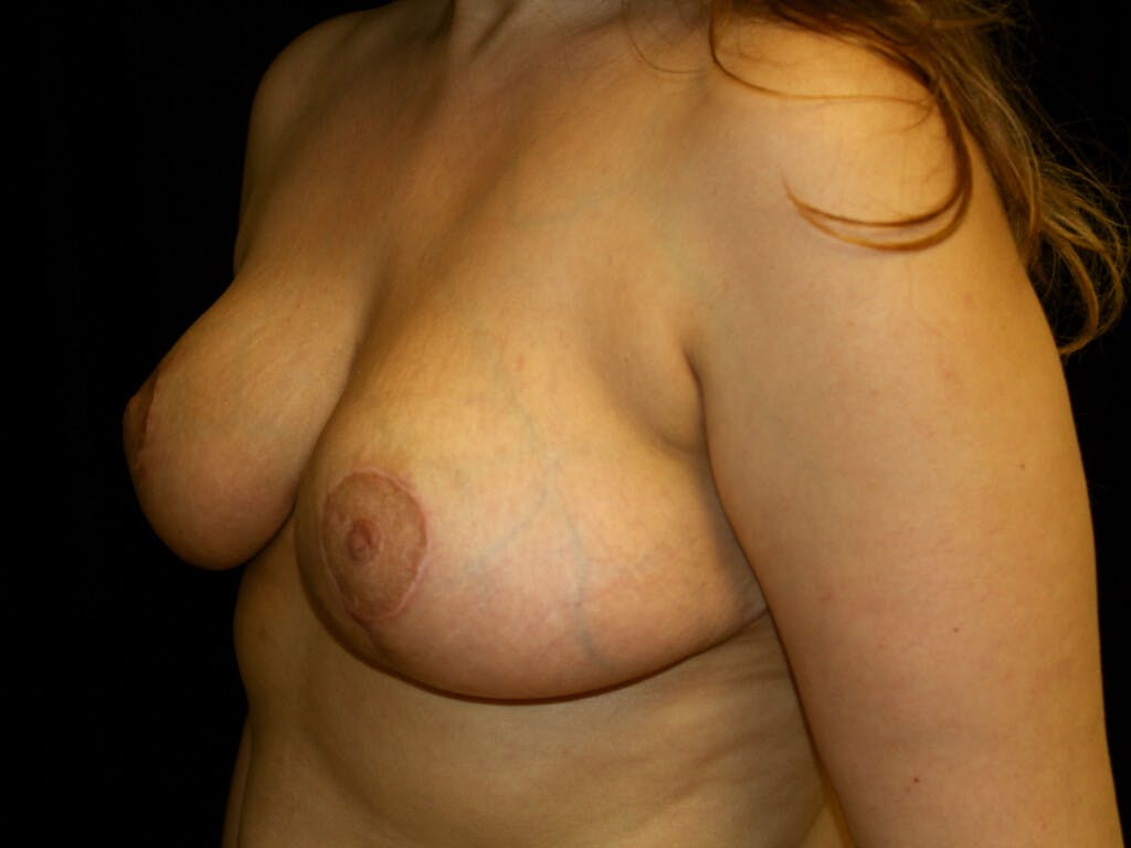 Breast Reduction T Incision Gallery - Patient 39244112 - Image 8
