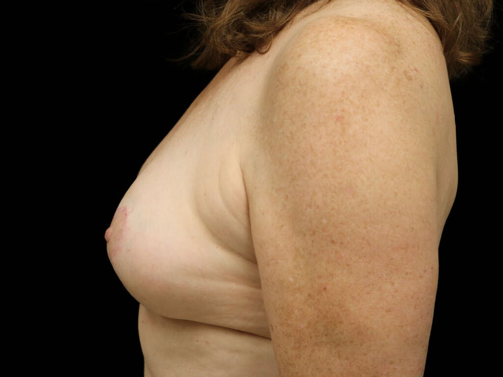 Vertical and Inverted T Breast Lift Gallery - Patient 39244110 - Image 10
