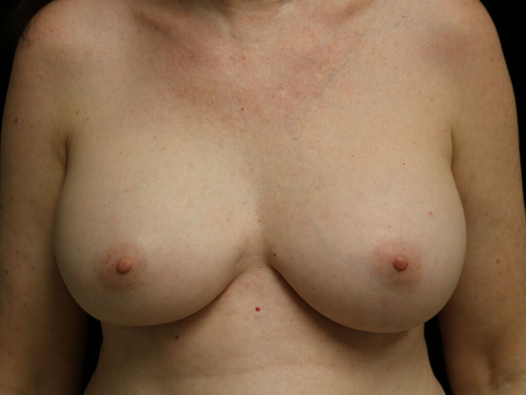 Revision Breast Surgery Gallery - Patient 39244120 - Image 2