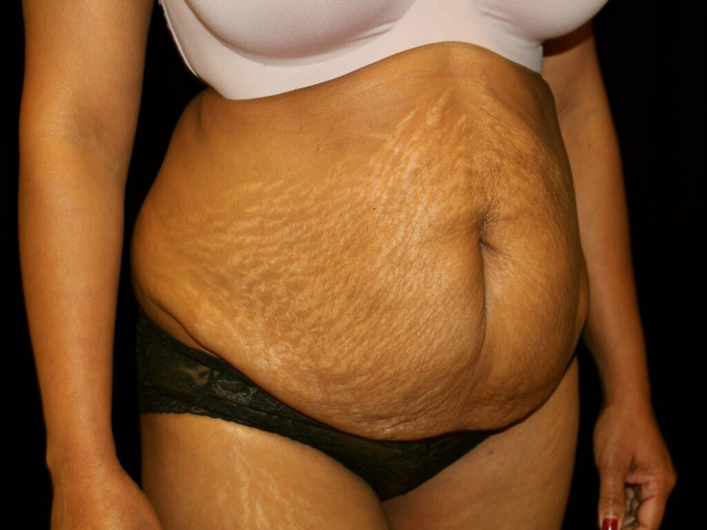 Tummy Tuck Gallery - Patient 39244124 - Image 3