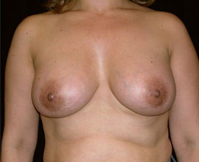 Breast Augmentation Gallery - Patient 39244111 - Image 2