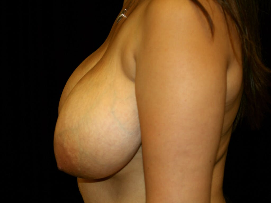 Breast Reduction T Incision Gallery - Patient 39244112 - Image 9