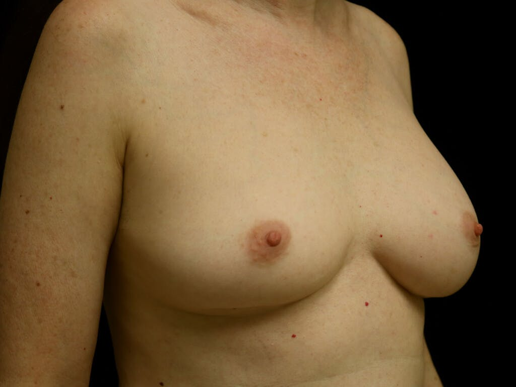 Revision Breast Surgery Gallery - Patient 39244120 - Image 3