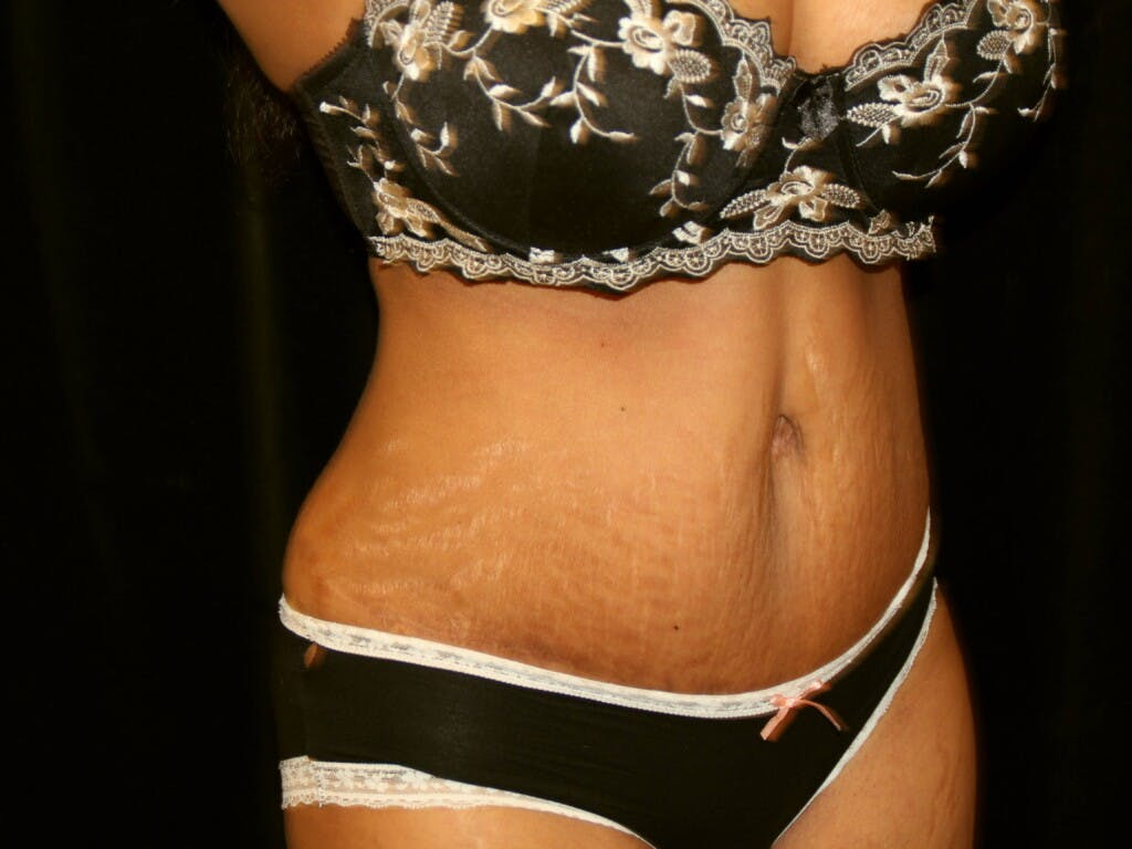 Tummy Tuck Gallery - Patient 39244124 - Image 4