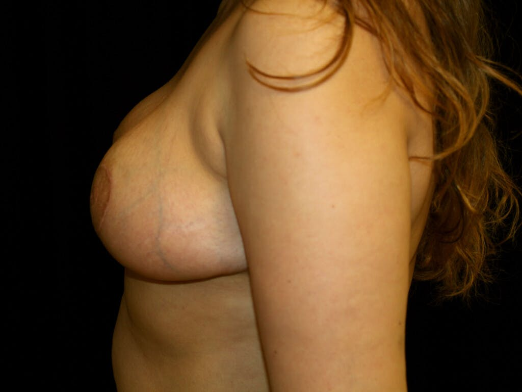 Breast Reduction T Incision Gallery - Patient 39244112 - Image 10
