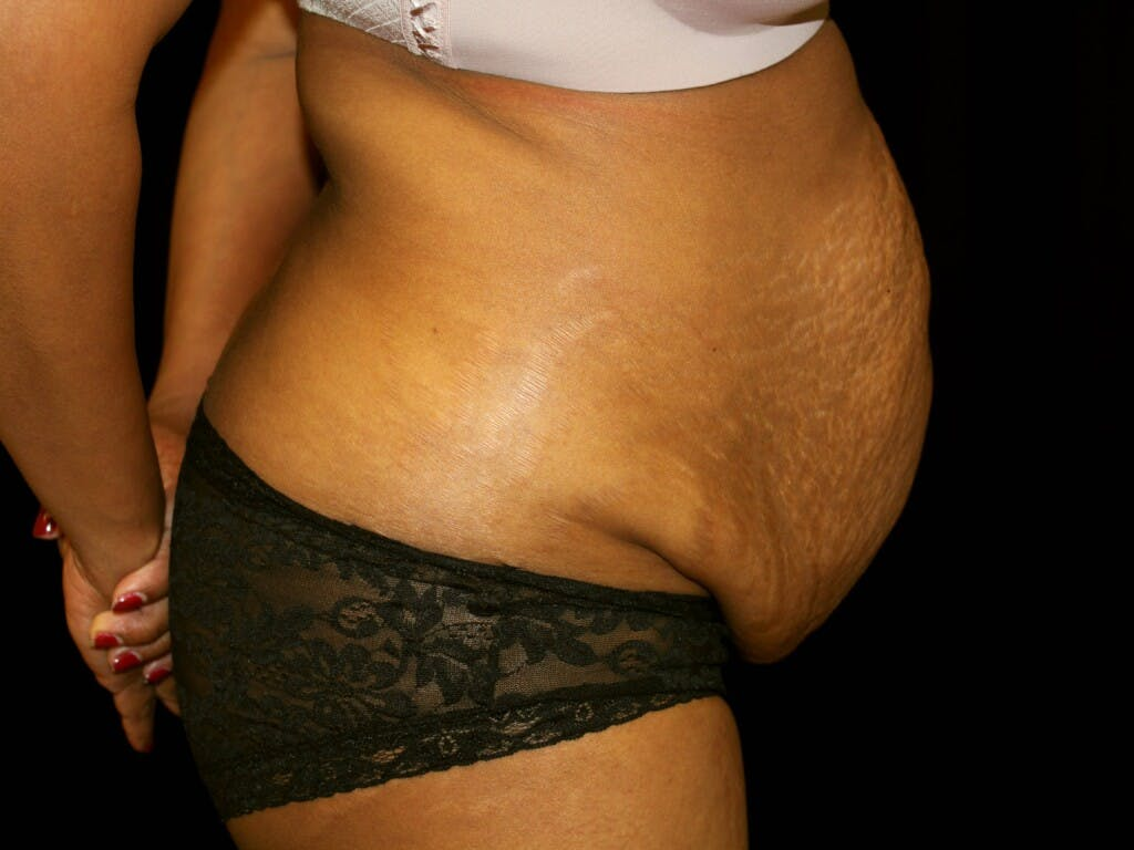 Tummy Tuck Gallery - Patient 39244124 - Image 5