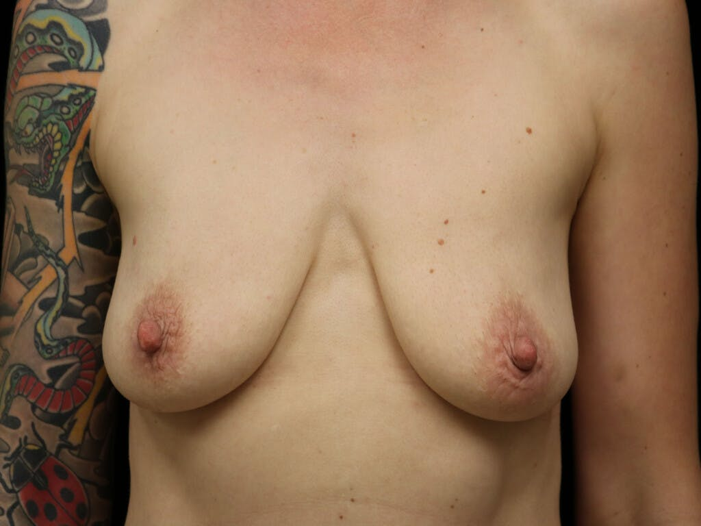 Vertical and Inverted T Breast Lift Gallery - Patient 39244126 - Image 1