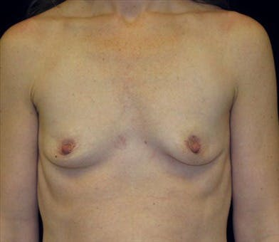 Breast Augmentation Gallery - Patient 39244118 - Image 1
