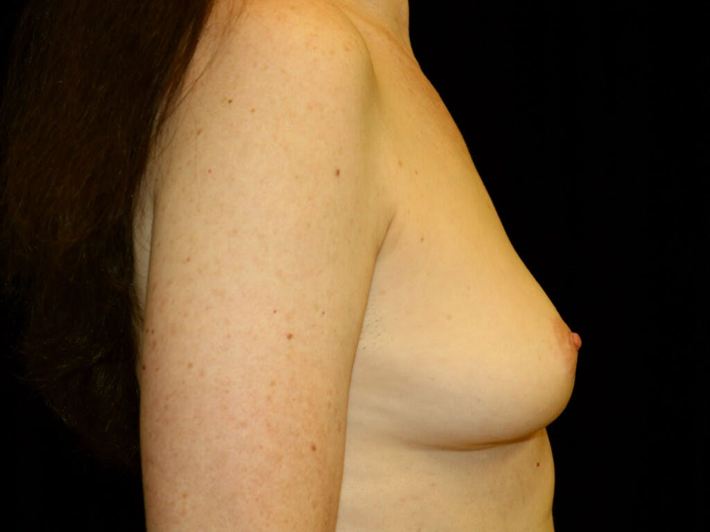 Revision Breast Surgery Gallery - Patient 39244120 - Image 5