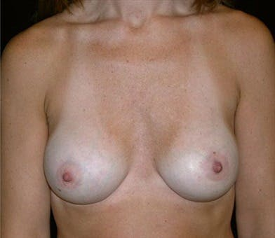 Breast Augmentation Gallery - Patient 39244118 - Image 2