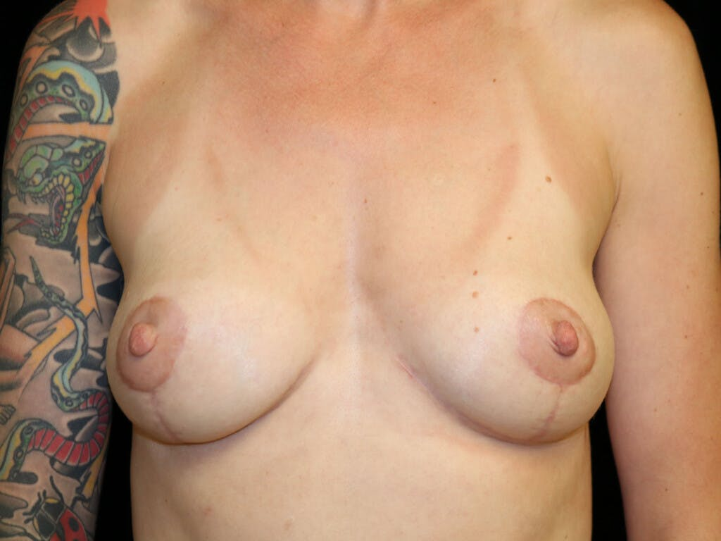Vertical and Inverted T Breast Lift Gallery - Patient 39244126 - Image 2