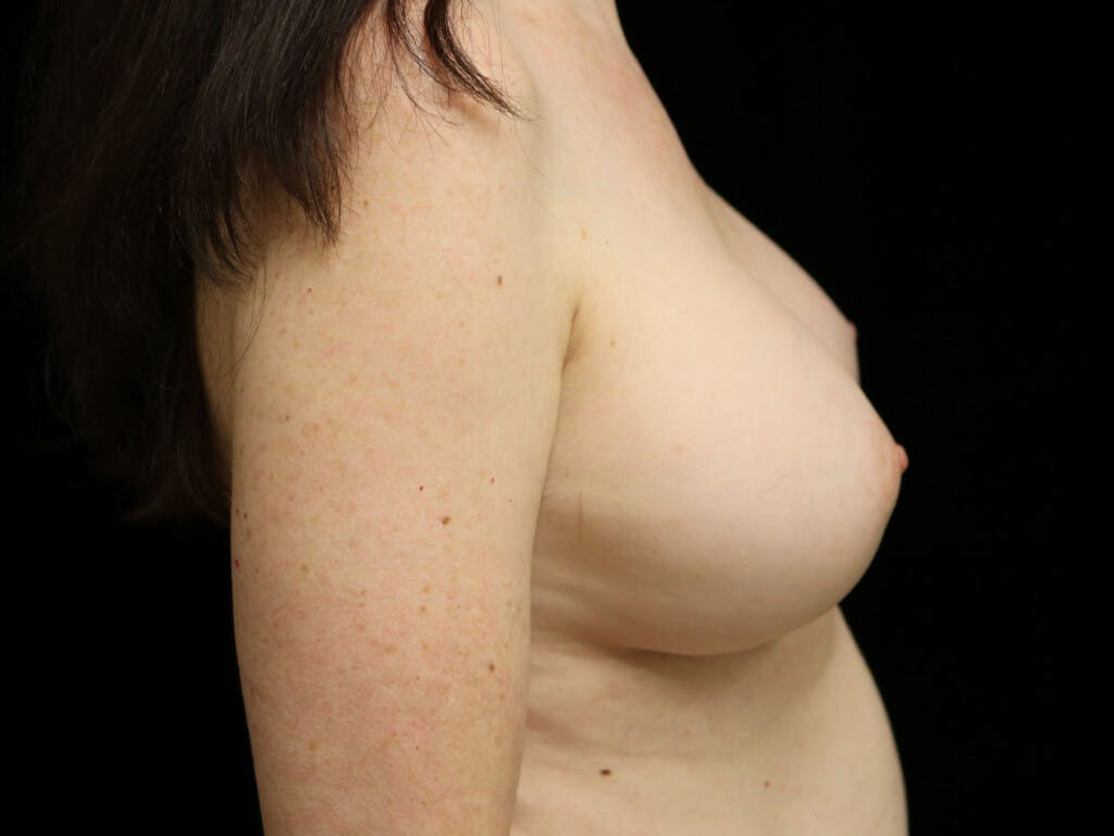 Revision Breast Surgery Gallery - Patient 39244120 - Image 6