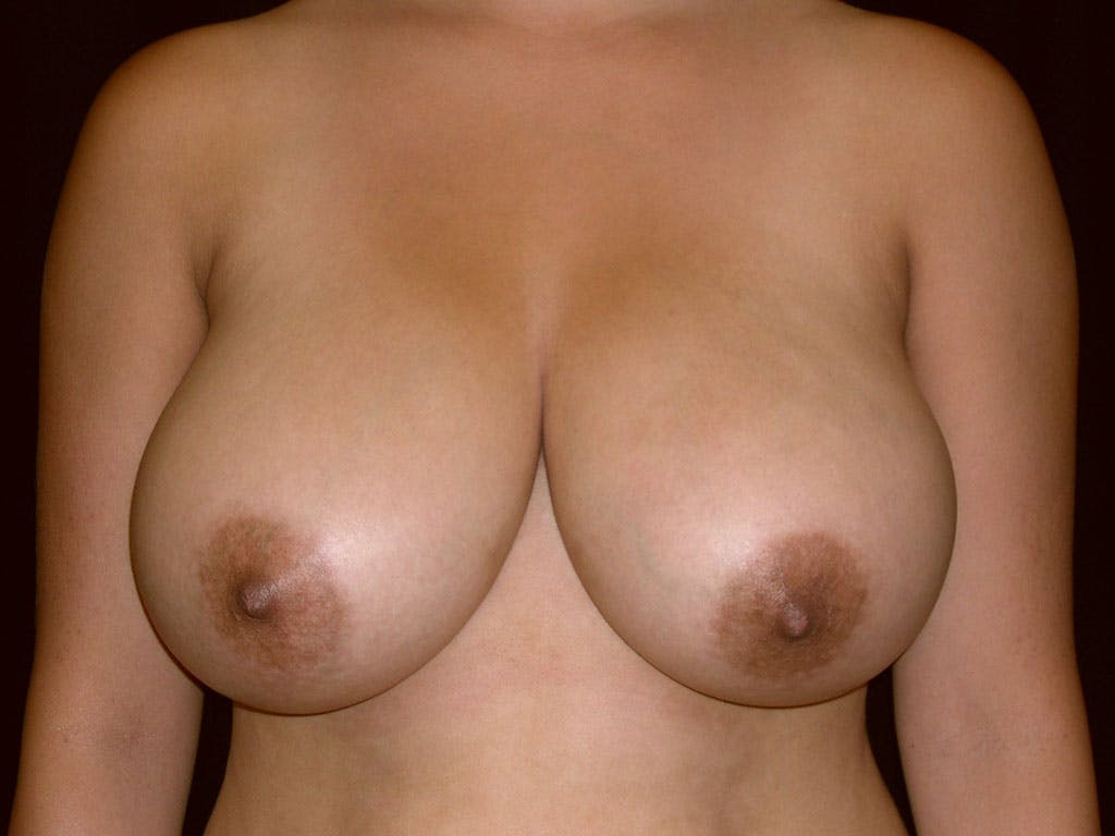 Breast Reduction T Incision Gallery - Patient 39244128 - Image 1
