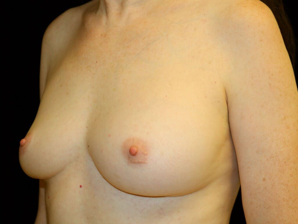 Revision Breast Surgery Gallery - Patient 39244120 - Image 7