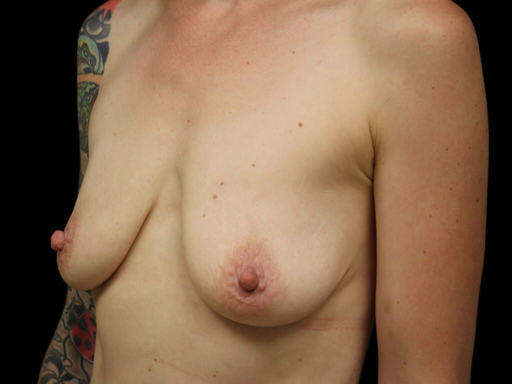 Vertical and Inverted T Breast Lift Gallery - Patient 39244126 - Image 3