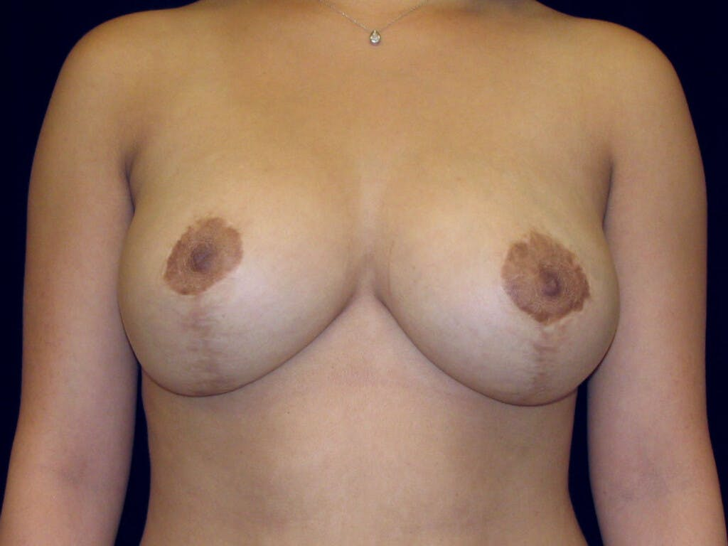 Breast Reduction T Incision Gallery - Patient 39244128 - Image 2