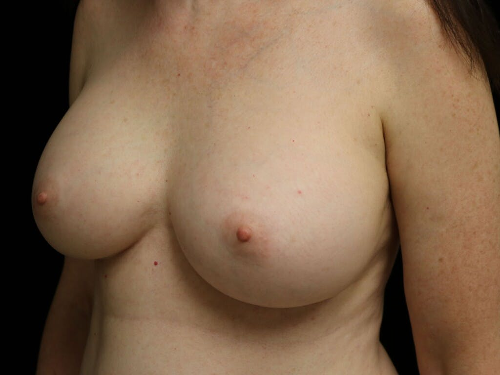 Revision Breast Surgery Gallery - Patient 39244120 - Image 8