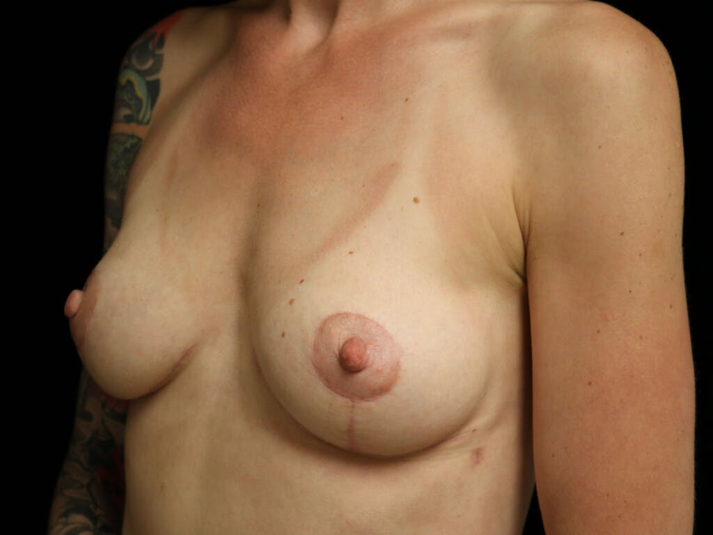 Vertical and Inverted T Breast Lift Gallery - Patient 39244126 - Image 4