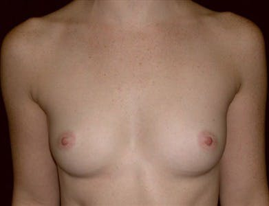 Breast Augmentation Gallery - Patient 39244121 - Image 1