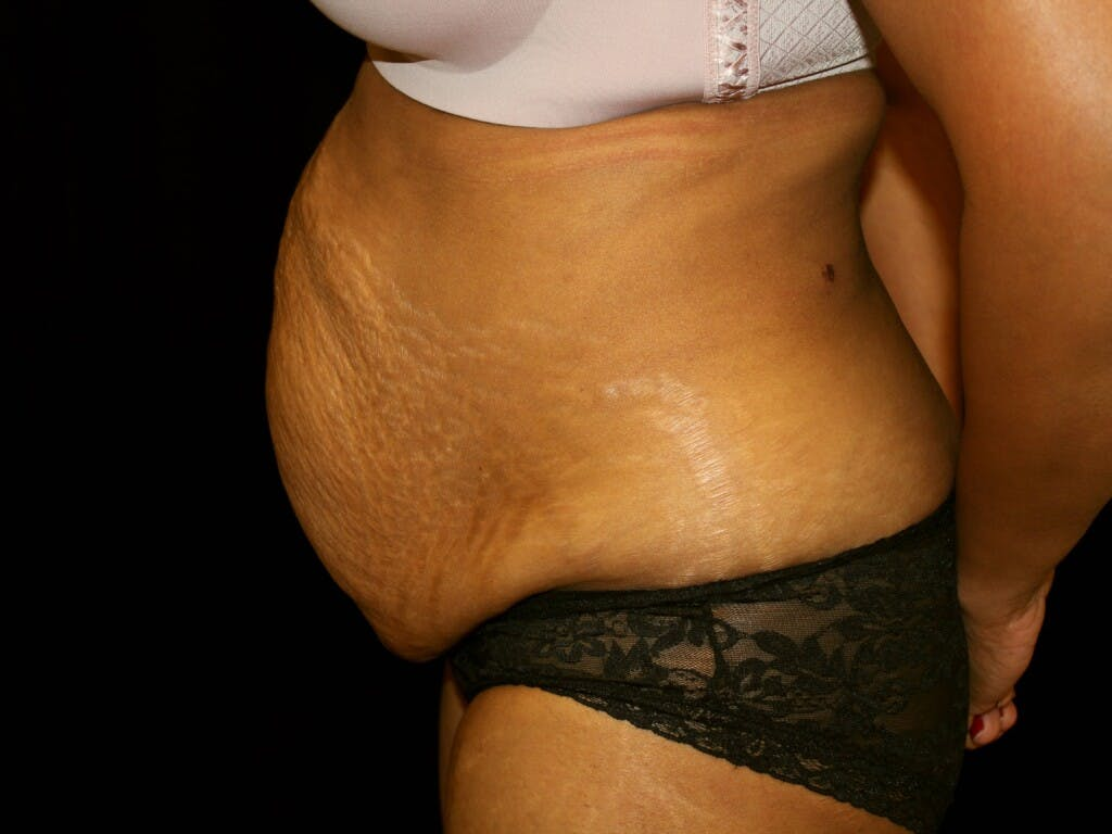 Tummy Tuck Gallery - Patient 39244124 - Image 9