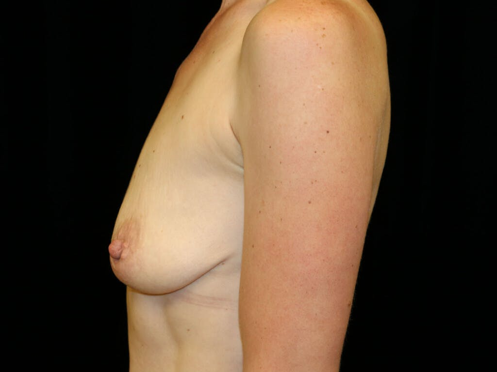 Vertical and Inverted T Breast Lift Gallery - Patient 39244126 - Image 5