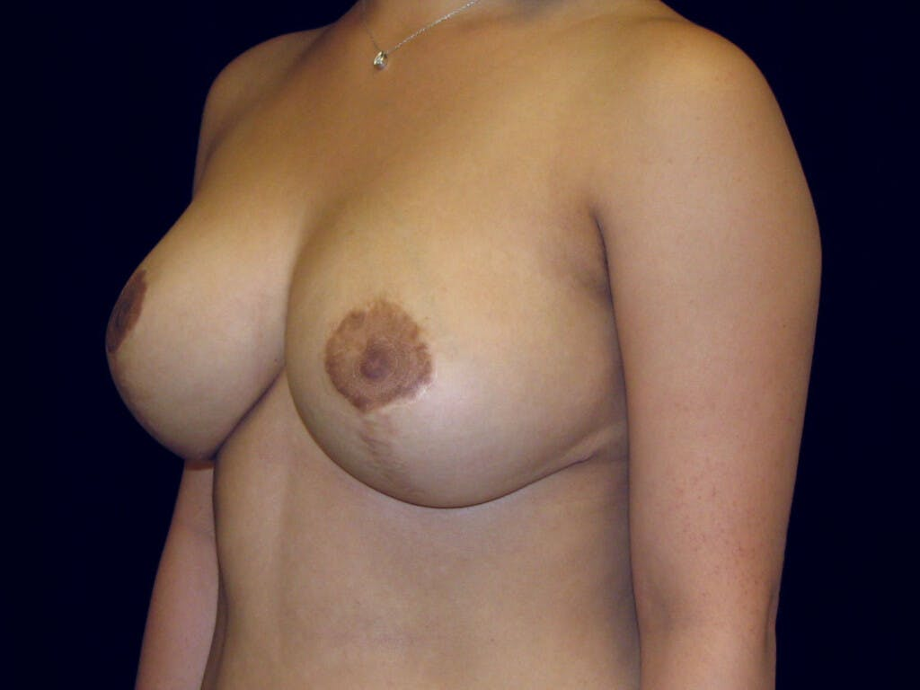 Breast Reduction T Incision Gallery - Patient 39244128 - Image 4