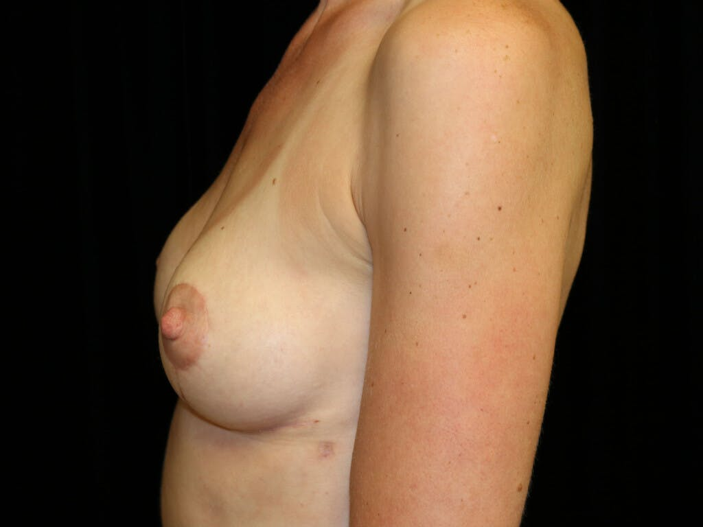 Vertical and Inverted T Breast Lift Gallery - Patient 39244126 - Image 6