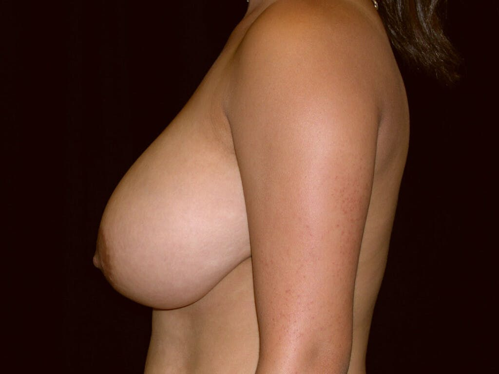 Breast Reduction T Incision Gallery - Patient 39244128 - Image 5